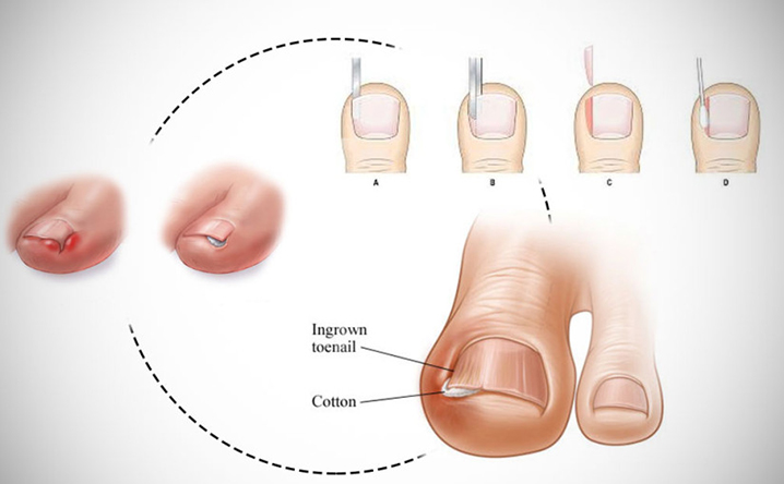 ingrown toenail packing